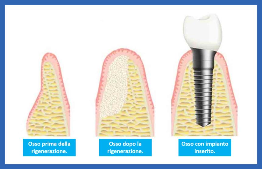 Che fare quando il volume di osso della bocca non e sufficiente a sostenere un impianto?