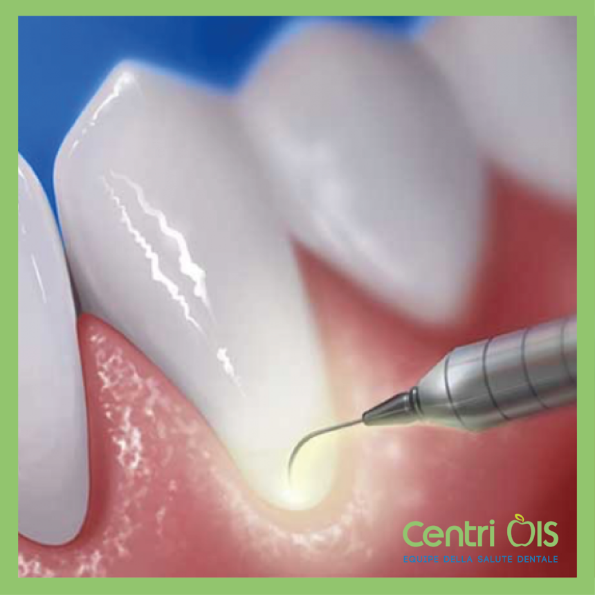 Il laser dal dentista