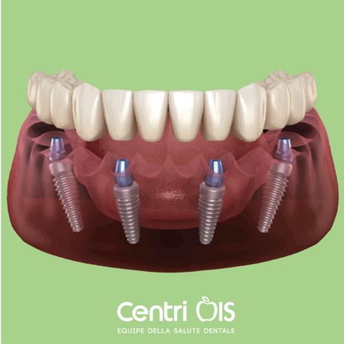 Perdita di denti? La dott.ssa Ambra Morlupi ci parla del carico immediato su 4 o 6 impianti, una soluzione di successo.
